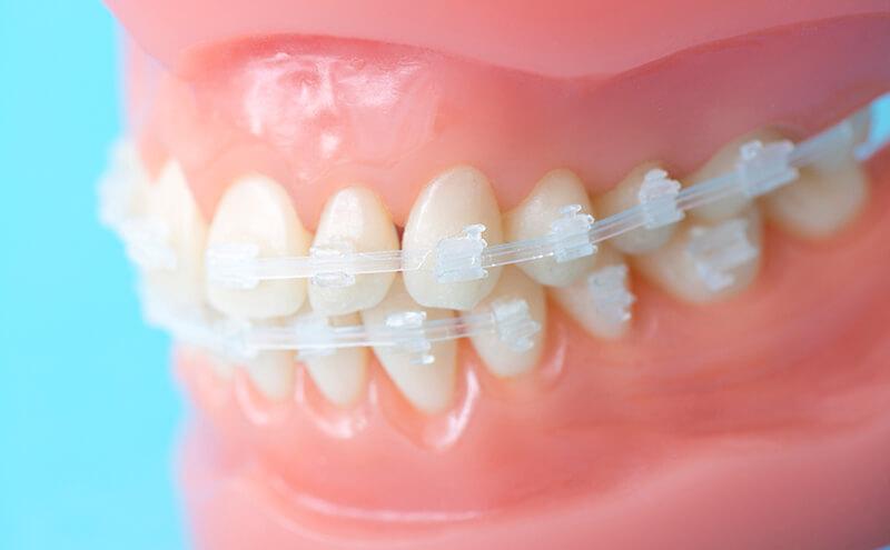 歯の表側に装着する透明な矯正「クリアブラケット」